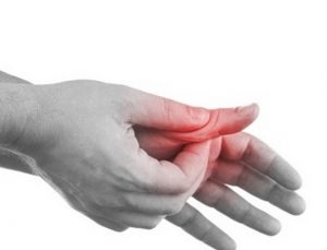 related image for finger sprain